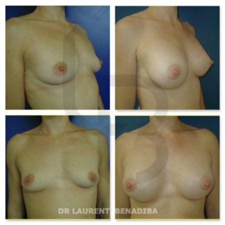 Femme, 29 ans, Seins tubéreux, Pré op taille 85A - UK 32A; Taille 1.63 / Poids 55kg ; Implants sérum taille 270g ; Post op C; Rétro-musculaire; Incision péri aérolaire  (en dessous de la partie inférieure de l'aréole du mamelon); Résultats à 26 jours