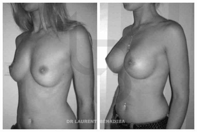 Taille prothèses en Gel de silicone 290g; Taille post op 90C - post op UK 34C; Rétro-Glandulaire; Incision péri aréolaire (en dessous de la partie inférieure de l'aréole du mamelon); Résultats après intervention