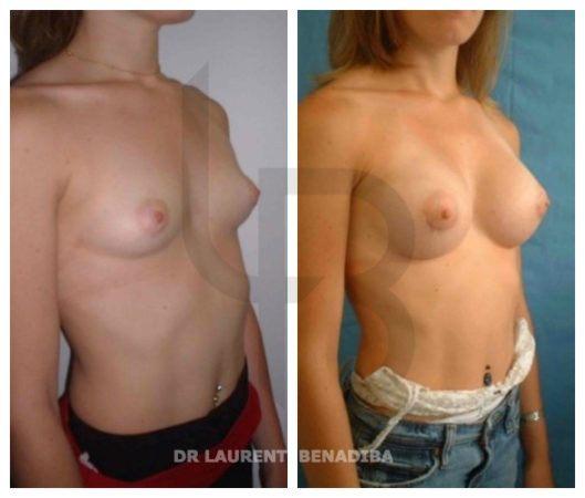 Femme, 29 ans; Taille Pré op 90A -UK 34A ; Taille 1.58 / Poids 56kg; Taille prothèses en Gel de silicone 210g; Taille post op 90B - Post op UK 34B; Rétro-Musculaire; Incision péri aréolaire (en dessous de la partie inférieure de l'aréole du mamelon); Résultats à 27 jours