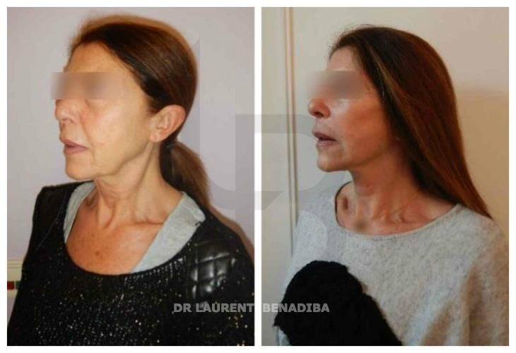 Face Lifting, woman 60 years old