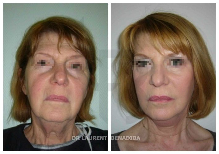 Face Lifting, 65 years old