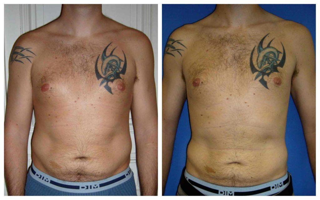 Le patient est âgé de 32 ans., il avait un surplus d'abdomen et des poignées d'amour. Le volume de graisse enlevé était d'environ 1500 cc.  Après 3 mois, le patient a perdu 7cm sur sa taille et 5cm sur ses hanches.
