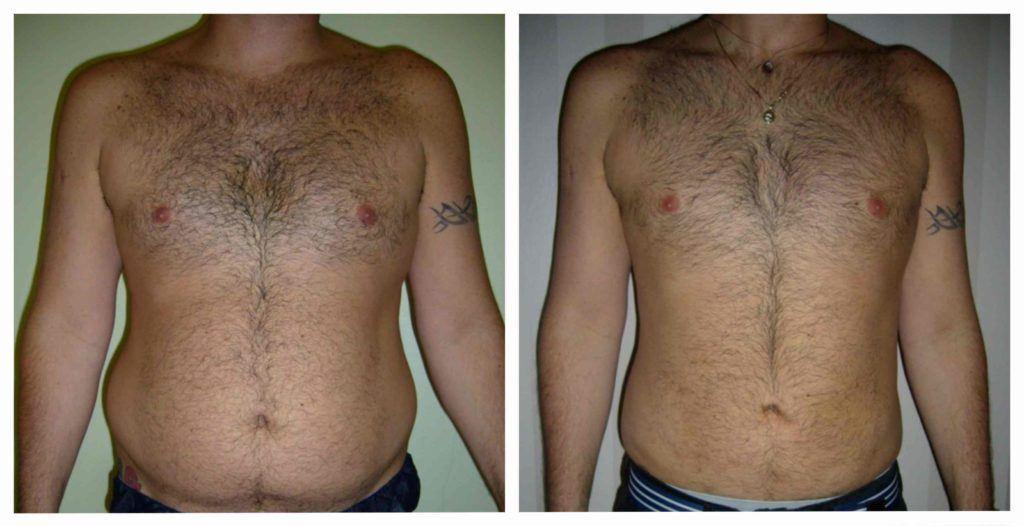 Le patient a 39 ans, il avait besoin d'une lipoaspiration de l'abdomen et des flancs. Le volume de graisse enlevé était autour de 2 000 cc.  Après 2 mois, le patient a perdu 8cm sur sa taille et 5 cm sur ses hanches.