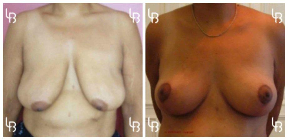 Ptose mammaire importante avec seins vides suite gastroplastie (perte de 40 kg), technique avec cicatrice en T inversée sans prothèse.