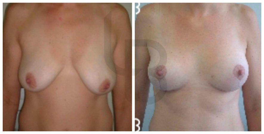Ptose mammaire moyenne avec seins vides suite grossesses, technique avec cicatrice unique verticale sans prothèse.