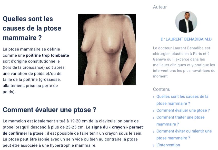 Article sur un portail éducatif sur ptôse mammaire écrit Laurent Benadiba