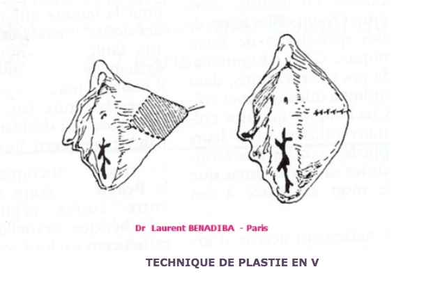 Plastie en V