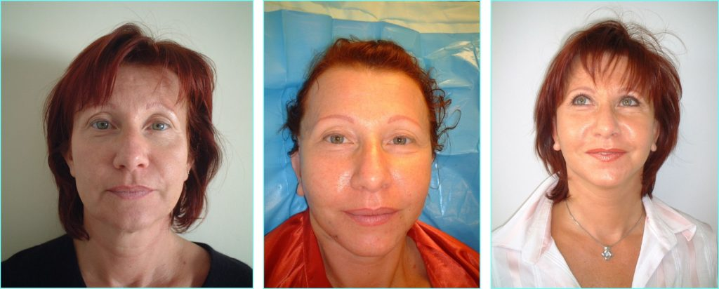 Face Lift, in 24h