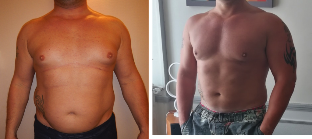 Renuvion abdomen à 6 mois